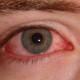 Симптомы конъюнктивита зависят от причины заболевания
