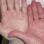 Дефицит железа в организме