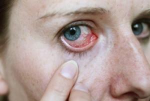 Инфекции глаз