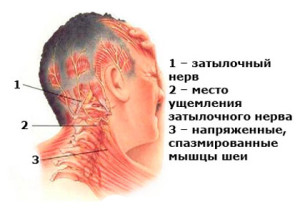 Болит голова от напряжения