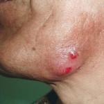 Актиномикоз, челюстно-лицевая форма
