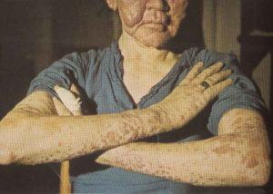 Лепроматозная лепра