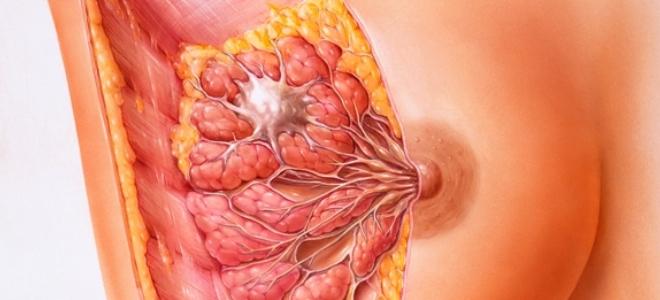 Диффузная мастопатия