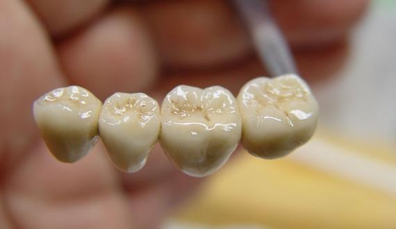 Металлокерамические зубные коронки