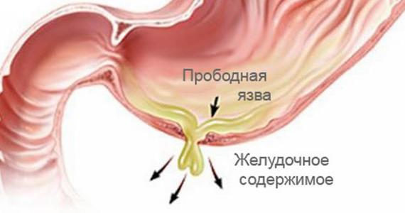 Перфоративная язва желудка