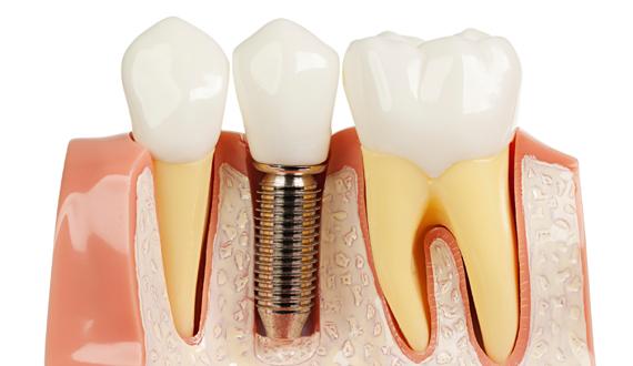 Протезирование зубов имплантация