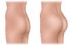 Глютеопластика