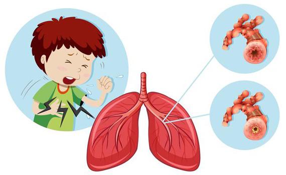 Бронхообструктивный синдром у детей