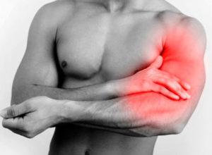 Растяжение двуглавой мышцы