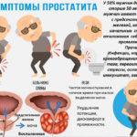 Признаки хронического простатита