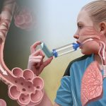 Лечение аллергической астмы