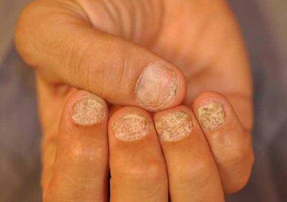 псориатический артрит ногти