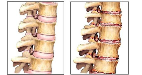 Псориатический артрит позвоночника