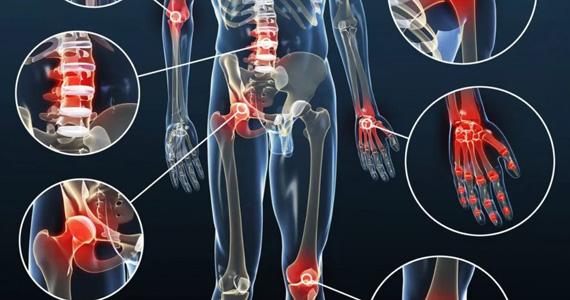 Псориатический артрит: симптомы