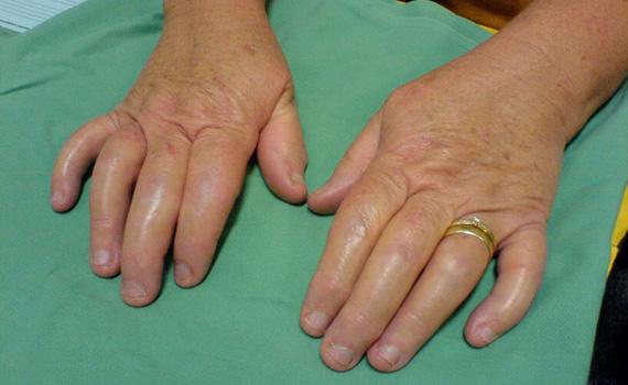 Сосискообразные пальцы